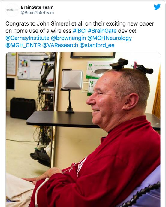 不用脑后插管 科学家首次实现脑机接口无线连接
